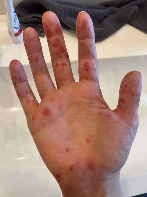 Hand-Mund-Fuss bei Erwachsenen - Ansteckend und schmerzhaft