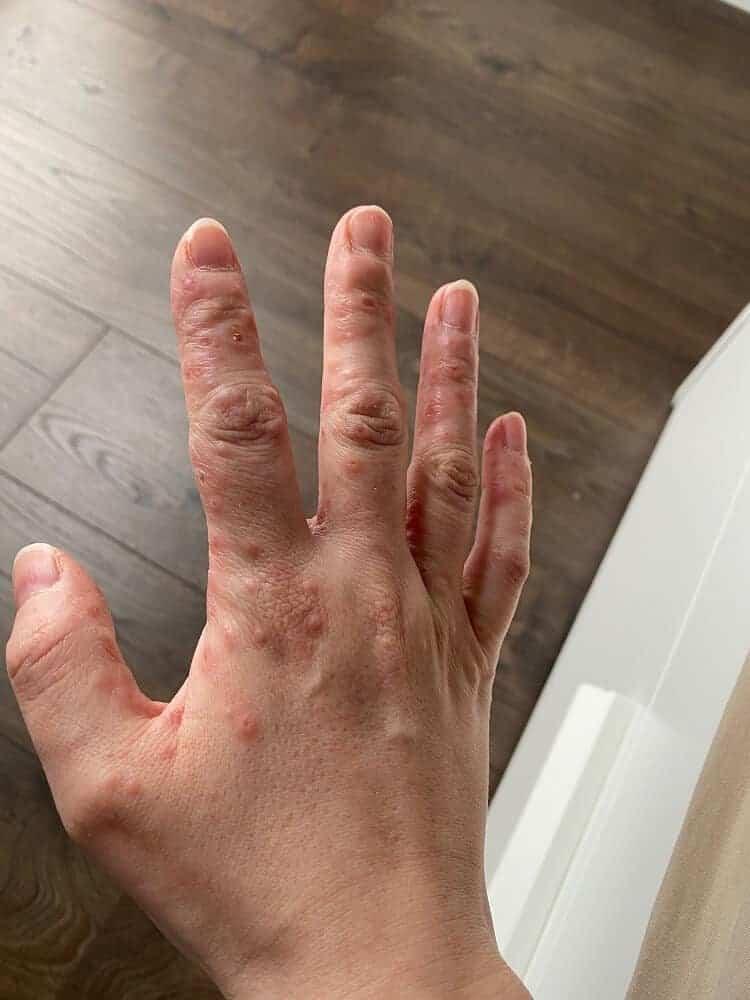 Die Hand-Mund-Fuss Krankheit ist hochgradig ansteckend und erwischt Erwachsene schon, bevor die Symptome bei den Kindern ausbricht