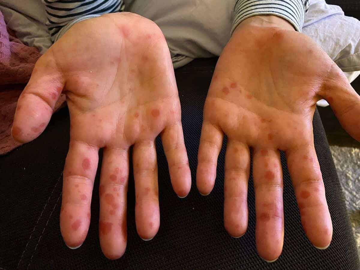 Die Hand-Mund-Fuss Krankheit ist hochgradig ansteckend und erwischt auch Eltern in Windeseile