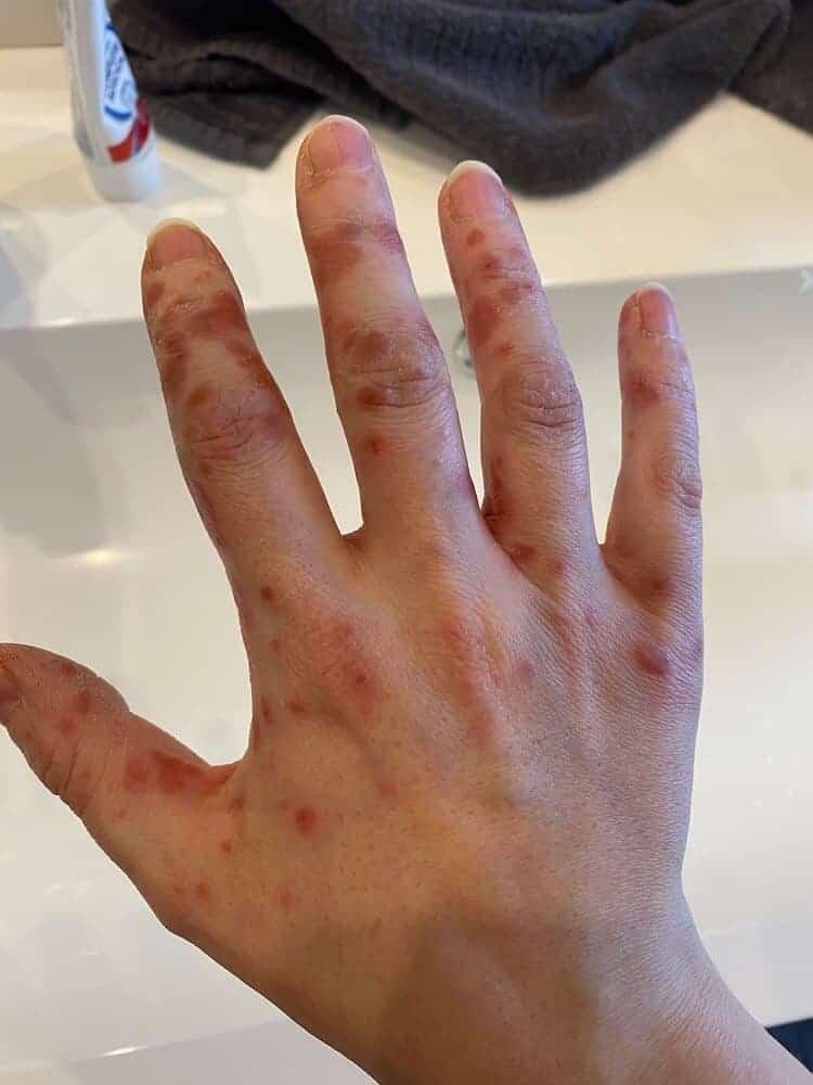 Die Hand-Mund-Fuss Krankheit tut bei Erwachsenen weh und spannt enorm