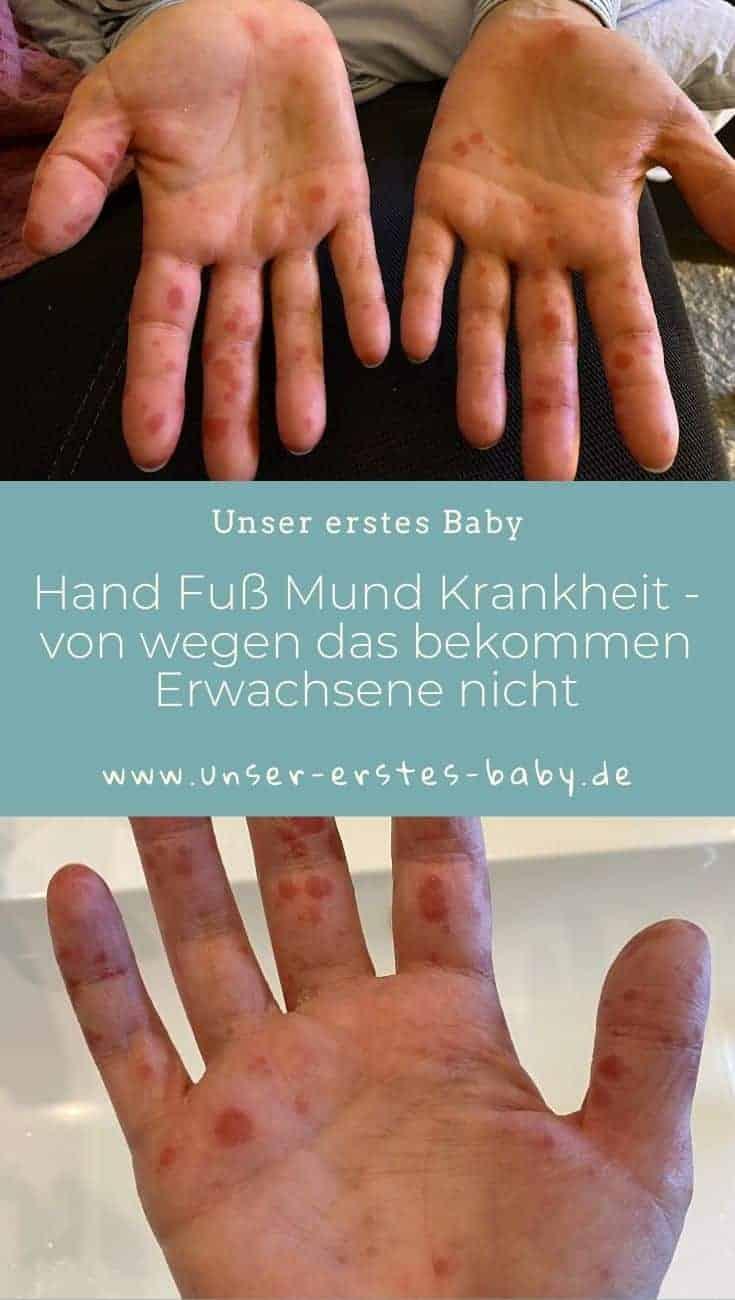 Hand Fuß Mund Krankheit So schlimmt ist der Krankheitsverlauf bei Erwachsenen