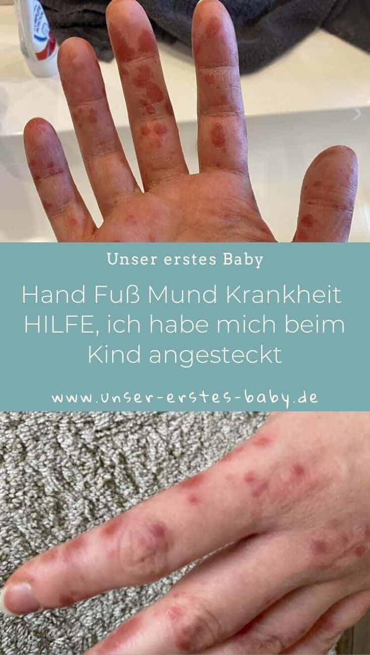 Hand Fuß Mund Krankheit HILFE, ich habe mich beim Kind angesteckt
