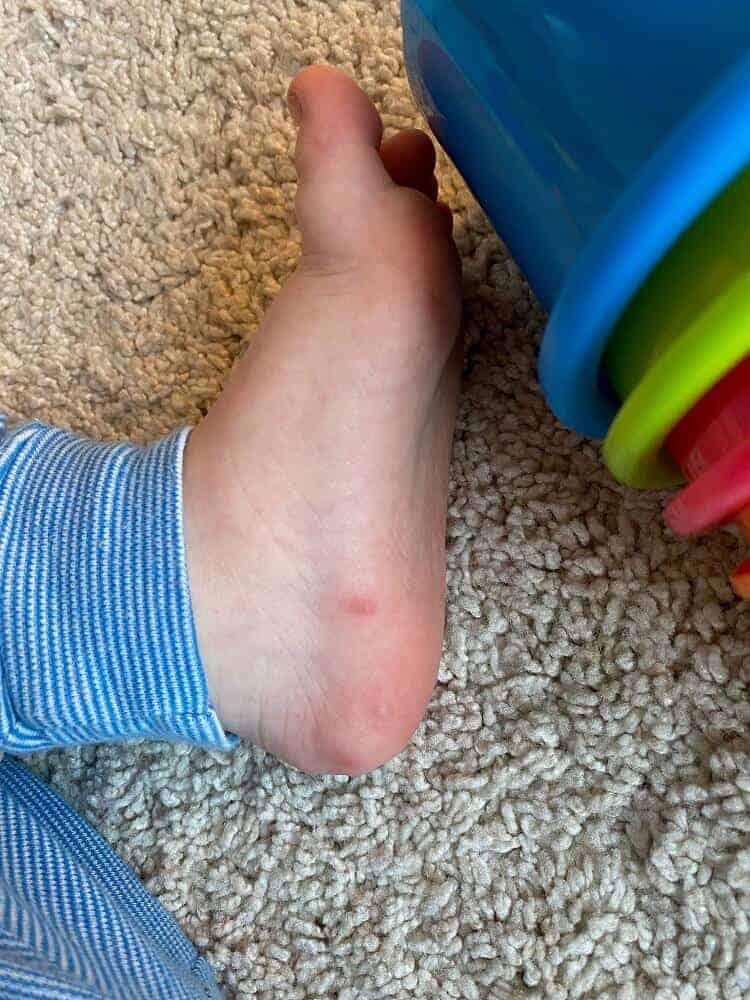 Kleine Pickel die jucken und Schmerzen sind typische Symptome der Mund-Hand-Fuss Krankheit