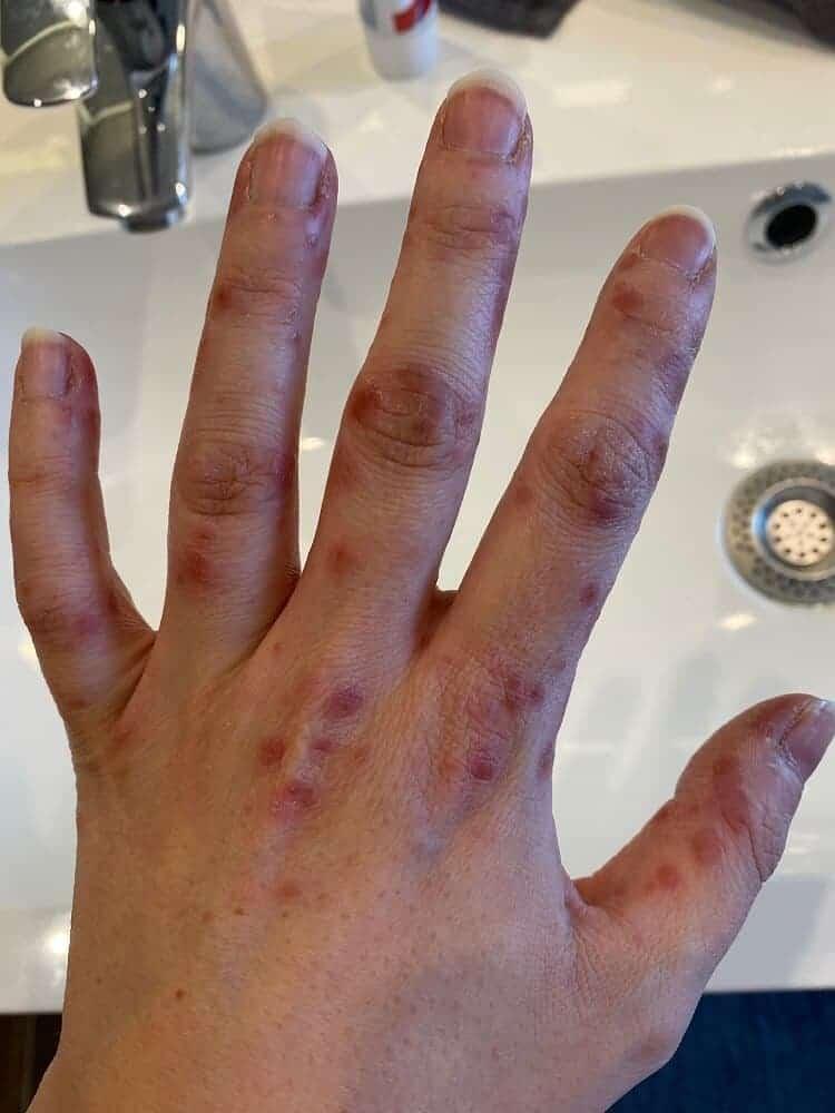 Nach Fieber in den ersten Tagen zeigt sich die Hand-Mund-Fuss Krankheit durch viele Bläschen an Händen und Füßen